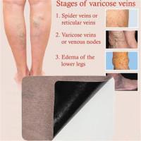 10PCS Имбирь Природный васкулит варикозное решение Sticking